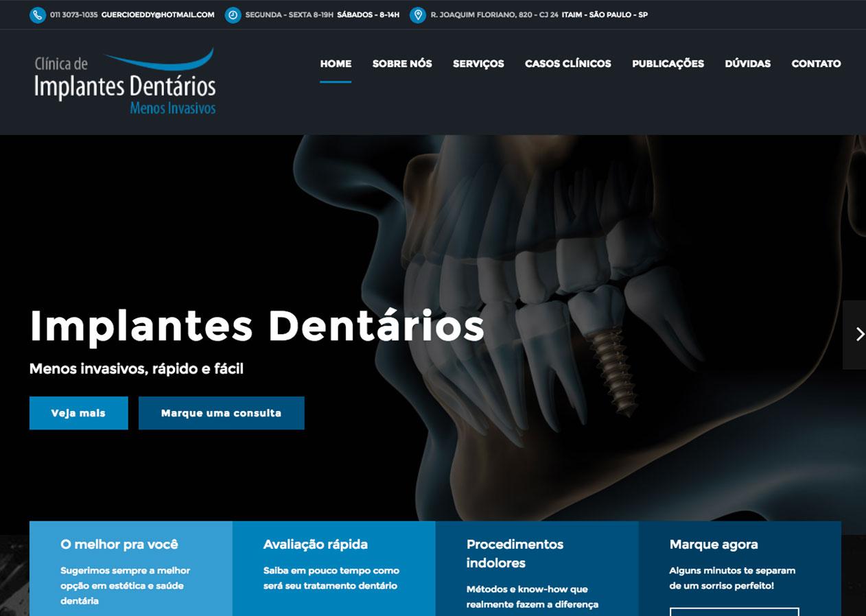 Clínca de Implantes Dentários