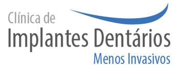 Clínica de Implantes Dentários Menos Invasivos